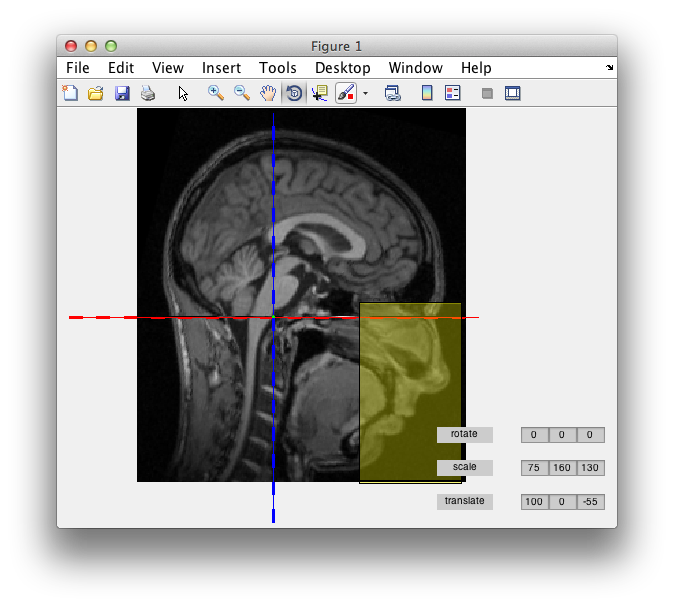 How Can I Anonymize Or Deidentify An Anatomical Mri Fieldtrip Toolbox