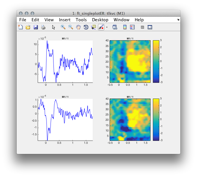 Beamforming evoked fields and potentials in combined MEG/EEG
