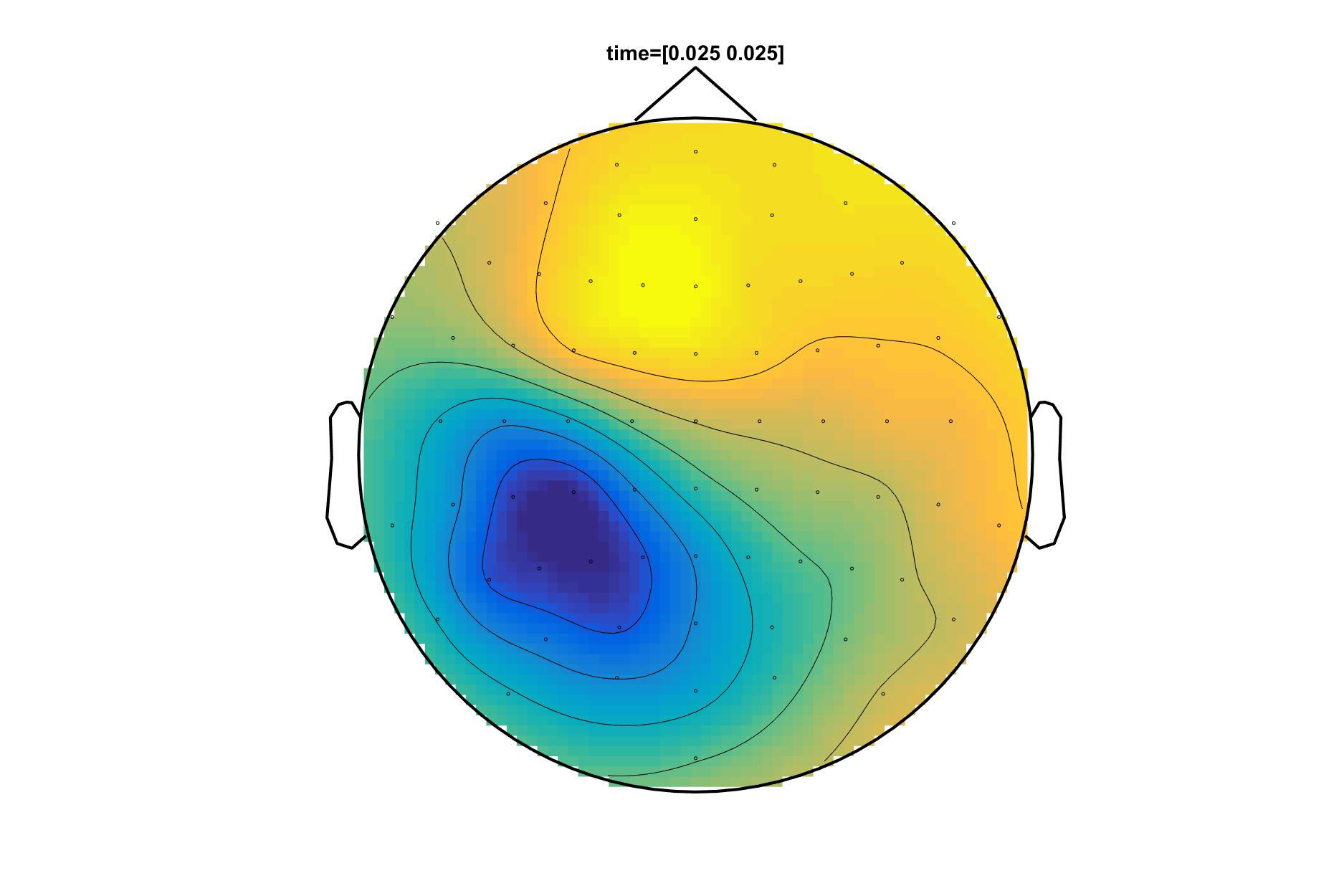 Preprocessing in EEG - FieldTrip toolbox