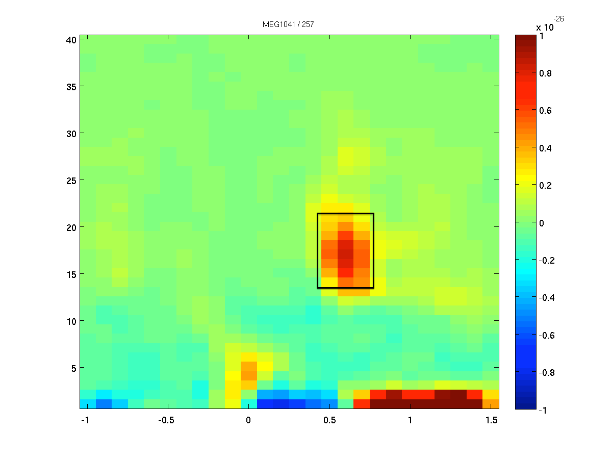 Beamforming oscillatory responses in MEG data - FieldTrip toolbox