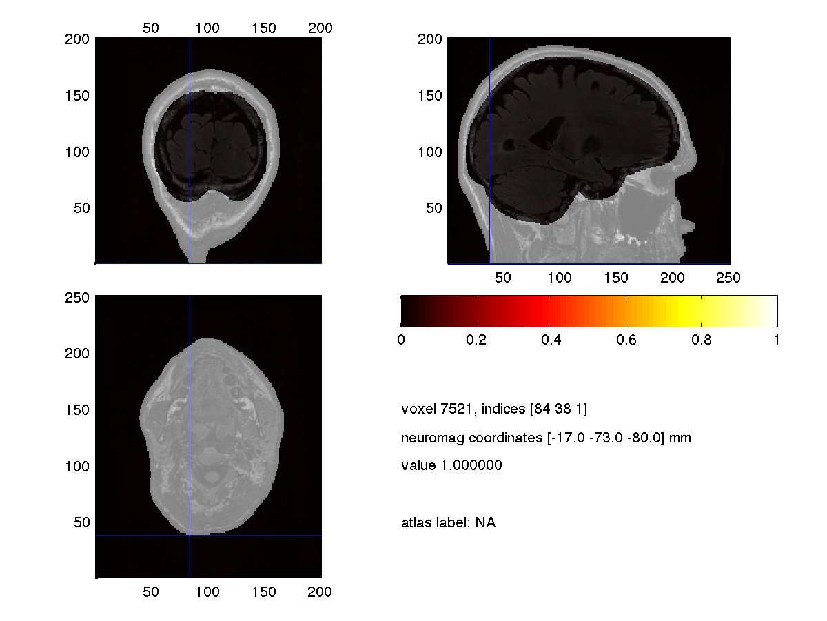 Dipole fitting of combined MEG/EEG data - FieldTrip toolbox